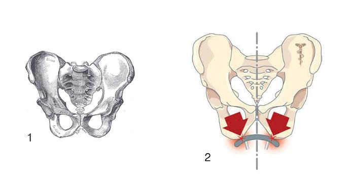 1 골반  2 좌골이 체중을 지탱한다