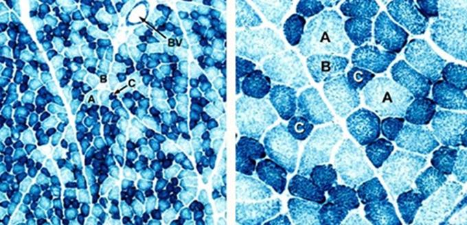 그림5. 사람의 근섬유 단면